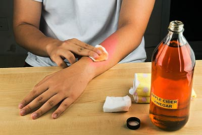 woman treating arm with apple cider vinegar