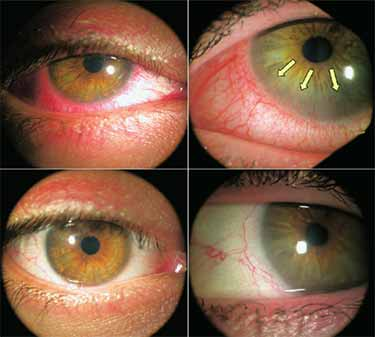 before and after tea tree oil treatment of eyelids