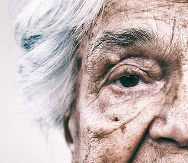 old woman with wrinkles and sun damage