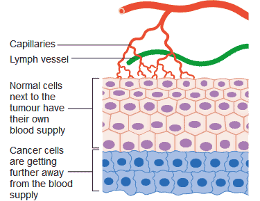 blood supply to tumor