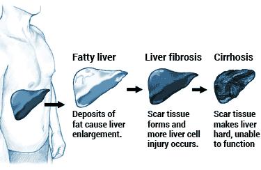 etapa de daño hepático