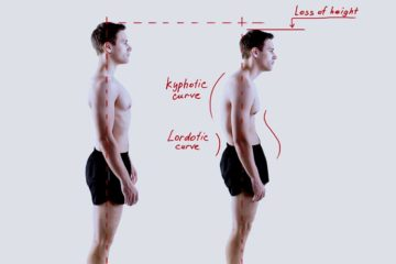 side effects of bad posture