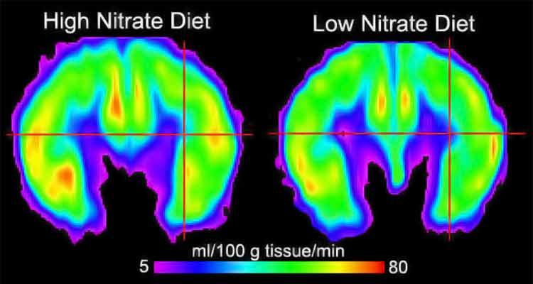 escáneres cerebrales que muestran niveles de óxido nítrico