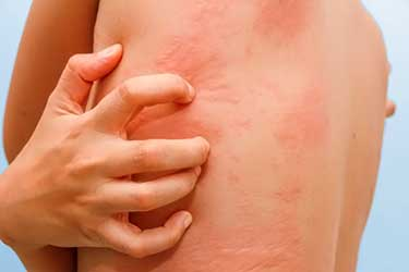 allergic skin reaction of hives and itching