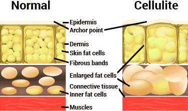 diagram of normal skin vs. cellulite