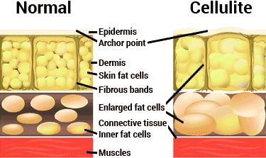 diagram of normal skin vs. cellulite