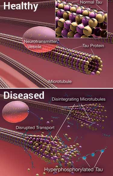tau protein tangles in Alzheimer's Disease