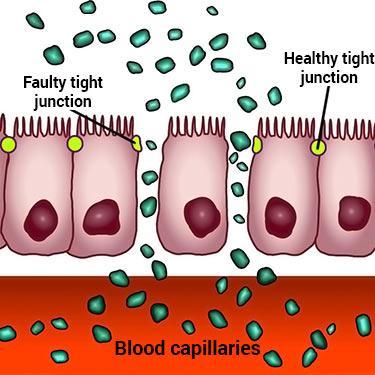 diagram of what leaky gut is
