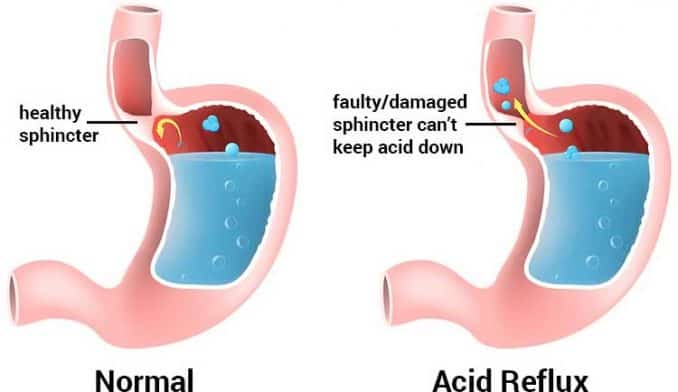 diagram of acid reflux vs. healthy sphincter