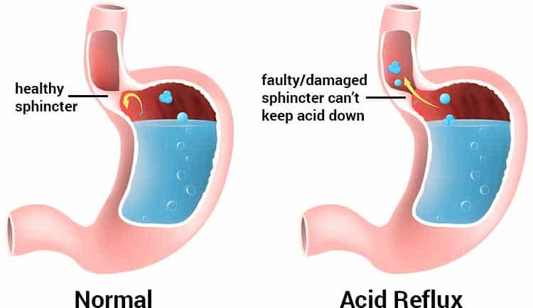 diagram of acid reflux vs. healthy sphincter