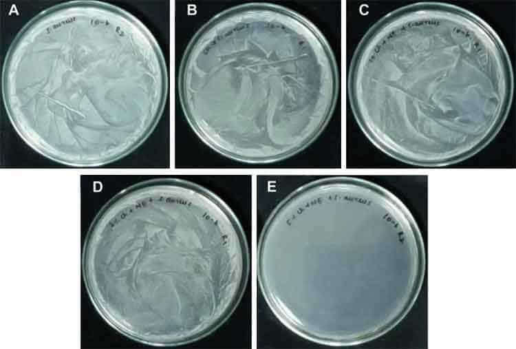 E. coli bacteria treated with Eucalyptus globulus essential oil