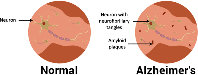 amyloid plaques and neurofibrillary tangles in Alzheimer's disease