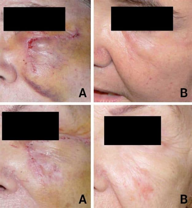 rosehip oil before and after scar photos