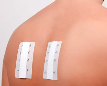 person's back with skin prick allergy test