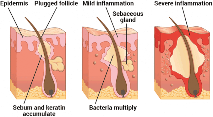 stages of how acne forms
