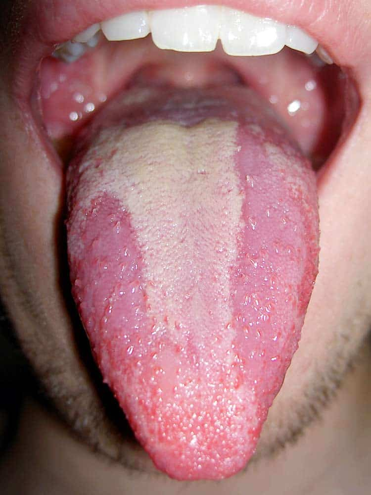pictures of mouth and tongue disease entusacom - 750×1000