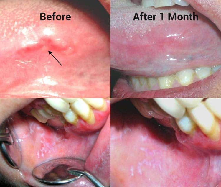 photos of canker sores before and after honey treatment