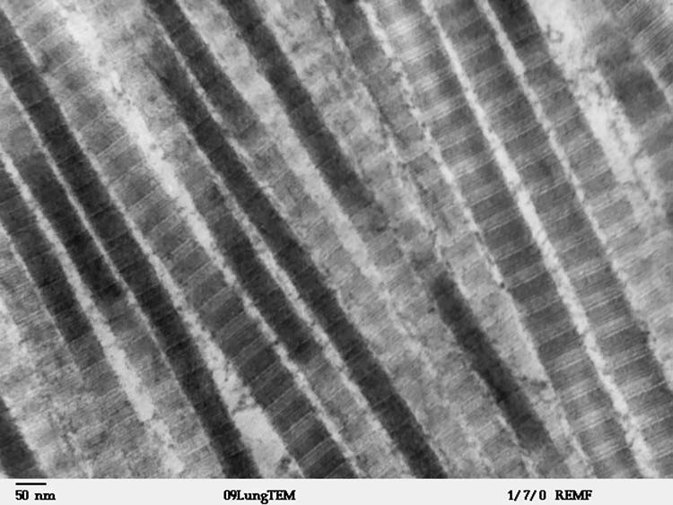 what type 1 collagen looks like under microscope