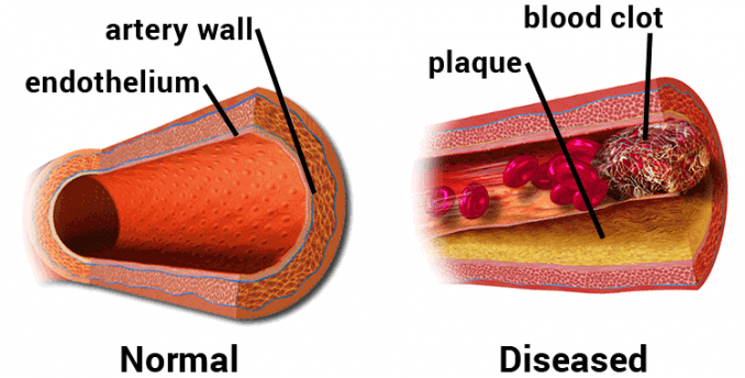 diagram of normal vs. diseased artery, showing plaque and blood clot