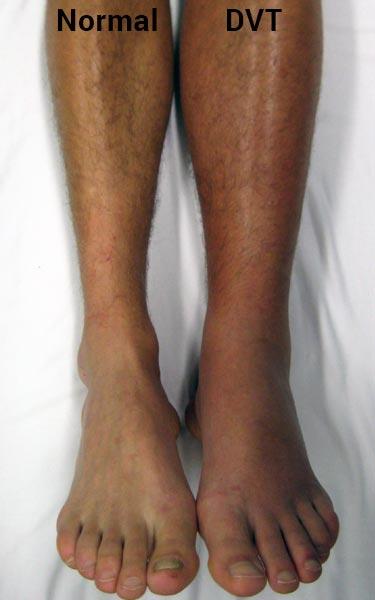 what DVT in leg looks like