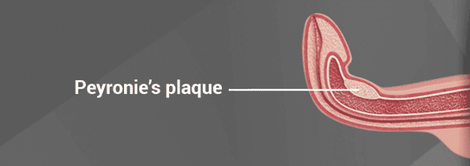 diagram showing Peyronie's plaque in penis shaft causing curved appearance