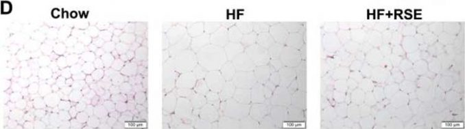 changes in white adipose fat tissue under microscope