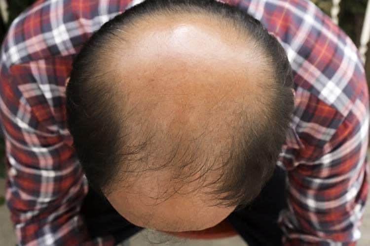 male bald head with hair loss on crown