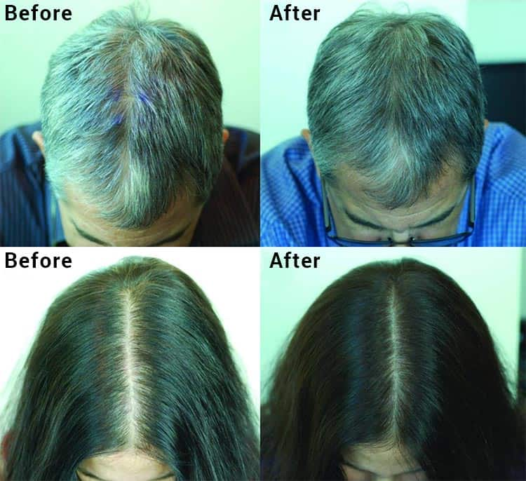 before and after photos showing hair regrowth with green tea supplement
