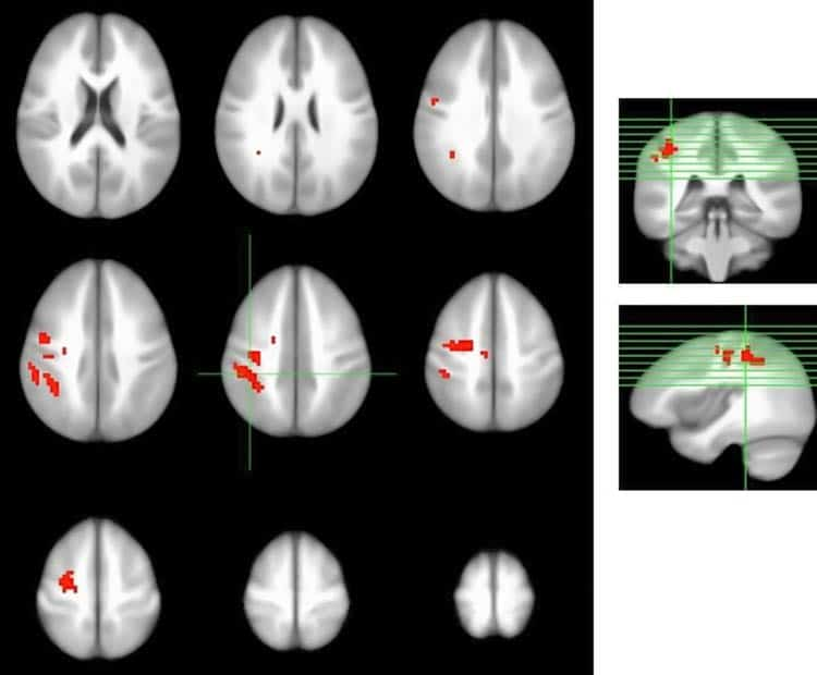 brain scans after berry consumption