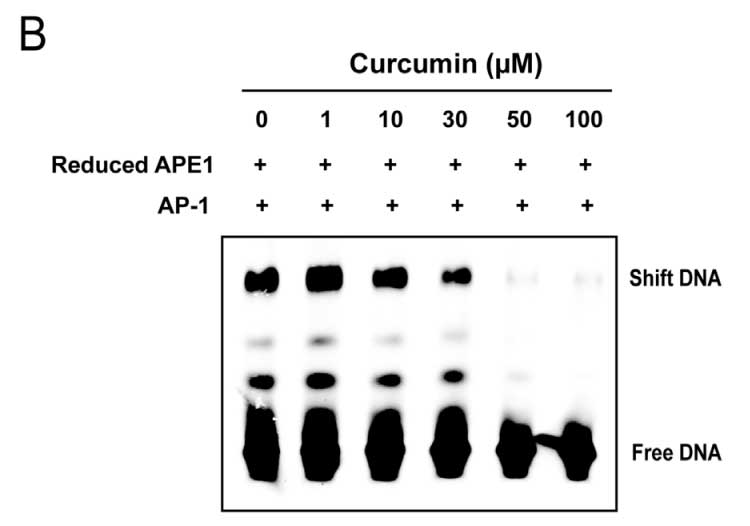 APE1 expression with and without curcumin treatment